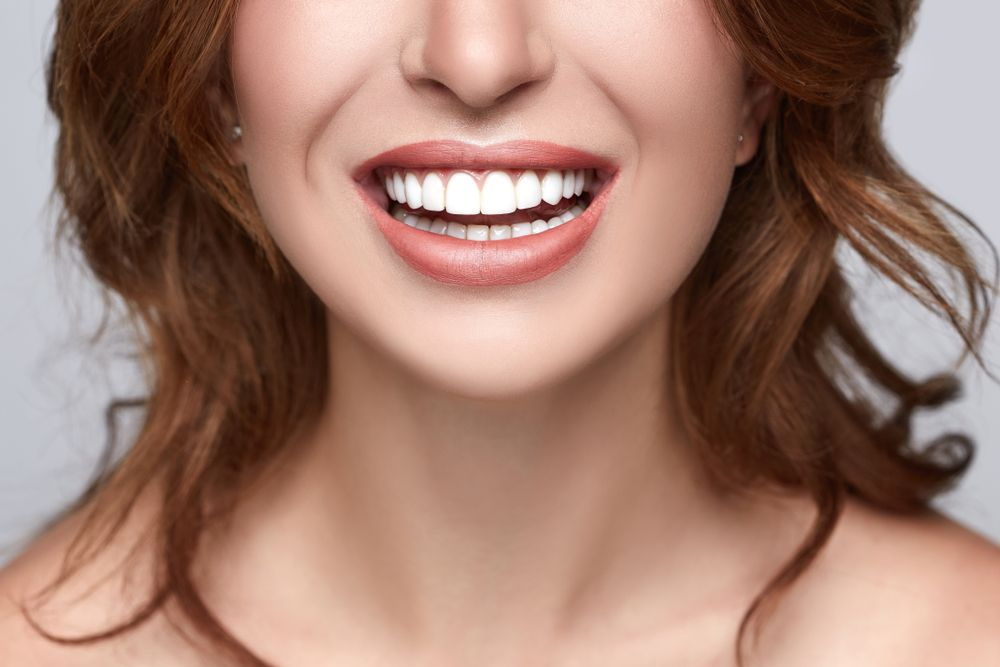 Teeth Whitening - Mills Haven Dental